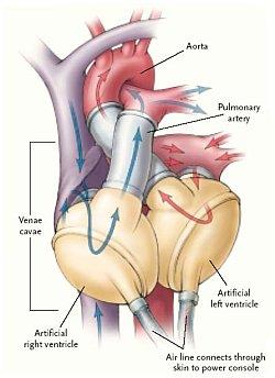 Diagram - Prosthetic Heart